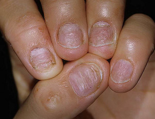 le psoriasis des ongles